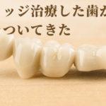 ブリッジ治療の歯がグラグラして咬めない