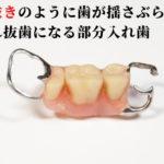 入れ歯のバネでひっかけた歯が揺れ始める
